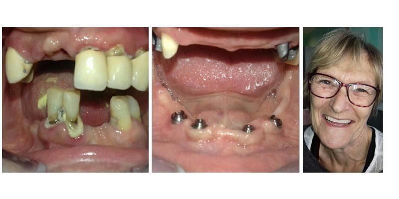 slucaj7pacijent2_implantologija01_800x400